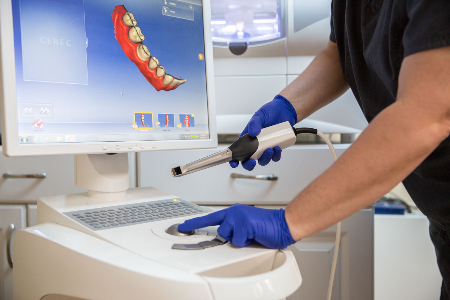 CEREC - Dental Technology Image